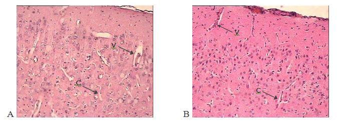 arterial-vasodilation-1