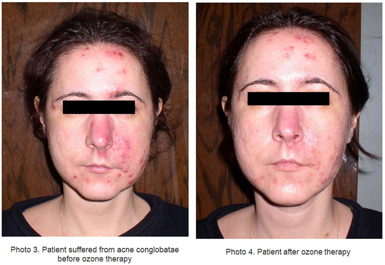 dynamics-of-lipid-peroxidation-indices-under-influence-of-ozone-therapy-in-patients-with-complicated-forms-of-rosacea-and-acne-disease-fig2